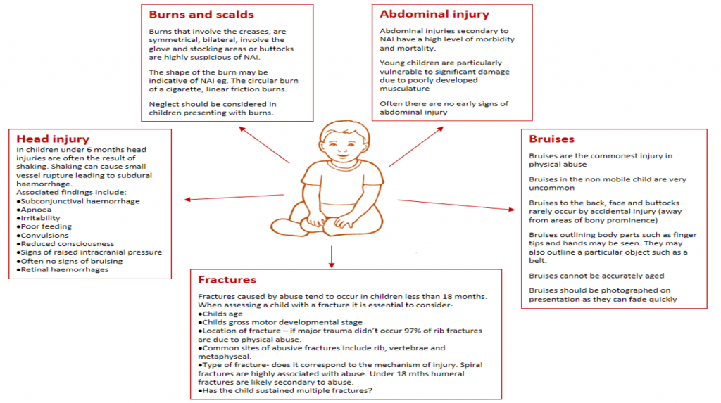 2 Types Of Child Abuse Have Same >> Child Protection Teachmepaediatrics Emotional Physical Sexual