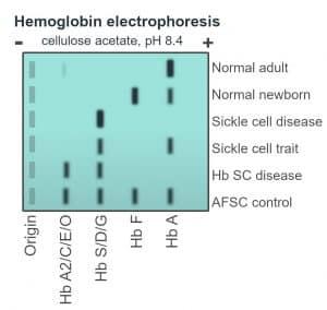 Schematic of haemoglobin electrophoresis