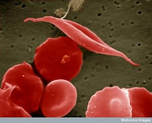 EM image of sickled red cell